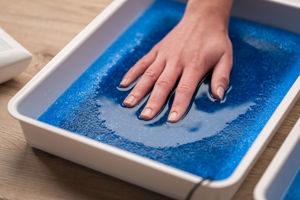 Anwendung der Iontophorese an den Händen bei palmarer Hyperhidrose (Hyperhidrosis palmaris)